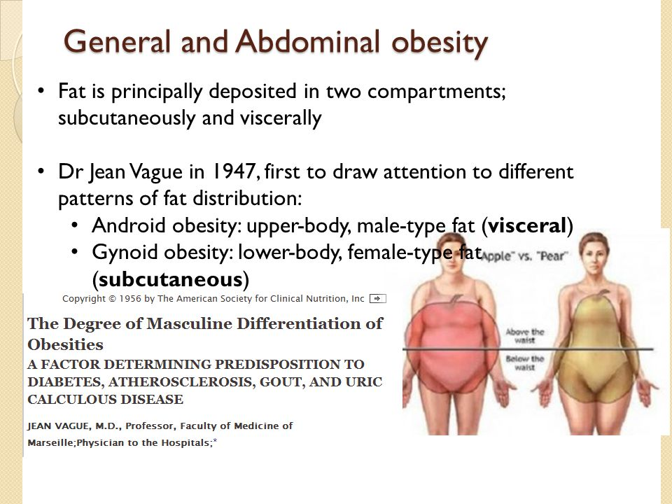 General and Abdominal obesity Fat is principally deposited in two compartments; subcutaneously and viscerally Dr Jean Vague in 1947, first to draw att