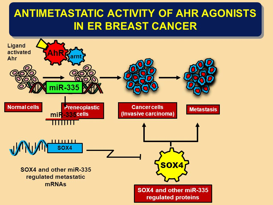ANTIMETASTATIC ACTIVITY OF AHR AGONISTS IN ER BREAST CANCER Normal cells Preneoplastic cells Cancer cells (Invasive carcinoma) Metastasis SOX4 SOX4 and other miR-335 regulated proteins miR-335 SOX4 SOX4 and other miR-335 regulated metastatic mRNAs arnt AhR Ligand activated Ahr