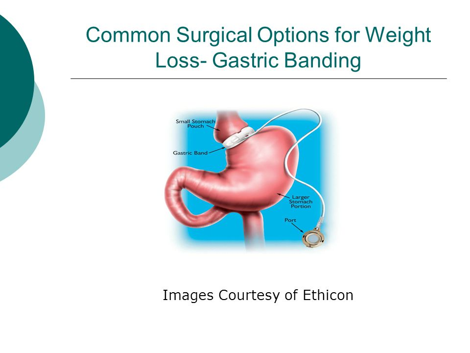Common Surgical Options for Weight Loss- Sleeve Gastrectomy Image Courtesy of Ethicon