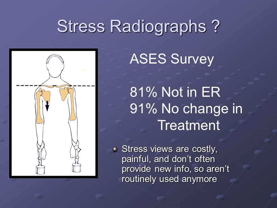 Stress Radiographs ? ASES Survey 81% Not in ER 91% No change in Treatment Stress views are costly, painful, and don't often provide new info, so aren'