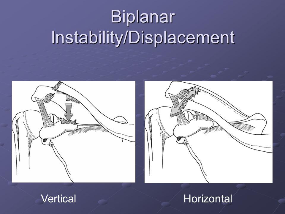 Biplanar Instability/Displacement VerticalHorizontal