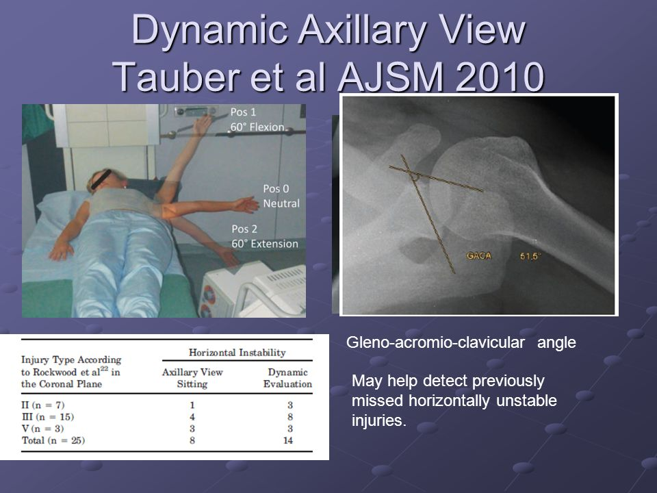 Dynamic Axillary View Tauber et al AJSM 2010 Gleno-acromio-clavicular angle May help detect previously missed horizontally unstable injuries.