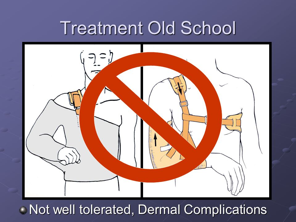 Treatment Old School Not well tolerated, Dermal Complications