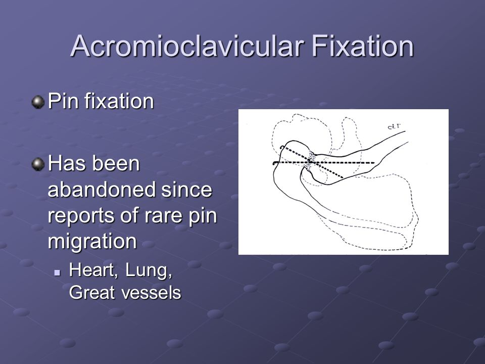 Acromioclavicular Fixation Pin fixation Has been abandoned since reports of rare pin migration Heart, Lung, Great vessels Heart, Lung, Great vessels