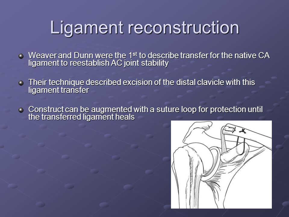 Ligament reconstruction Weaver and Dunn were the 1 st to describe transfer for the native CA ligament to reestablish AC joint stability Their technique described excision of the distal clavicle with this ligament transfer Construct can be augmented with a suture loop for protection until the transferred ligament heals