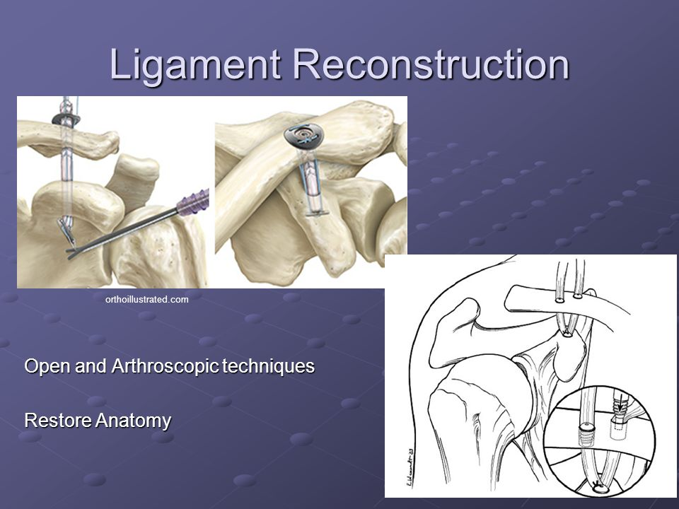 Ligament Reconstruction Open and Arthroscopic techniques Restore Anatomy orthoillustrated.com