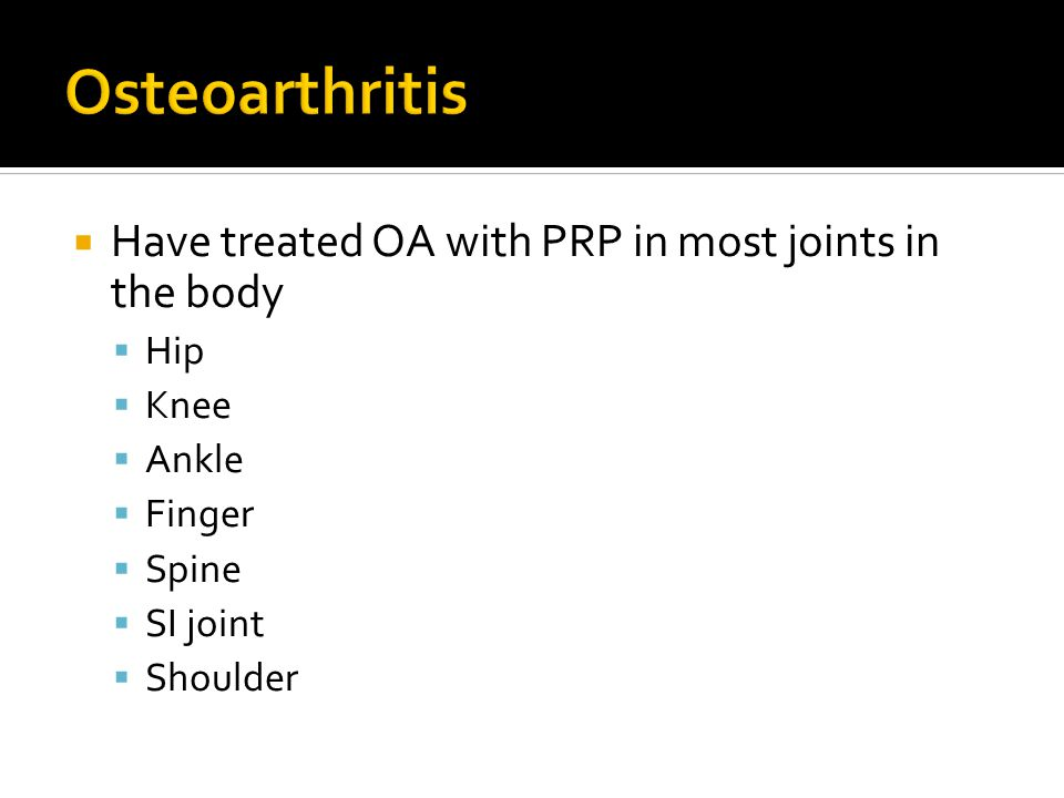  Have treated OA with PRP in most joints in the body  Hip  Knee  Ankle  Finger  Spine  SI joint  Shoulder