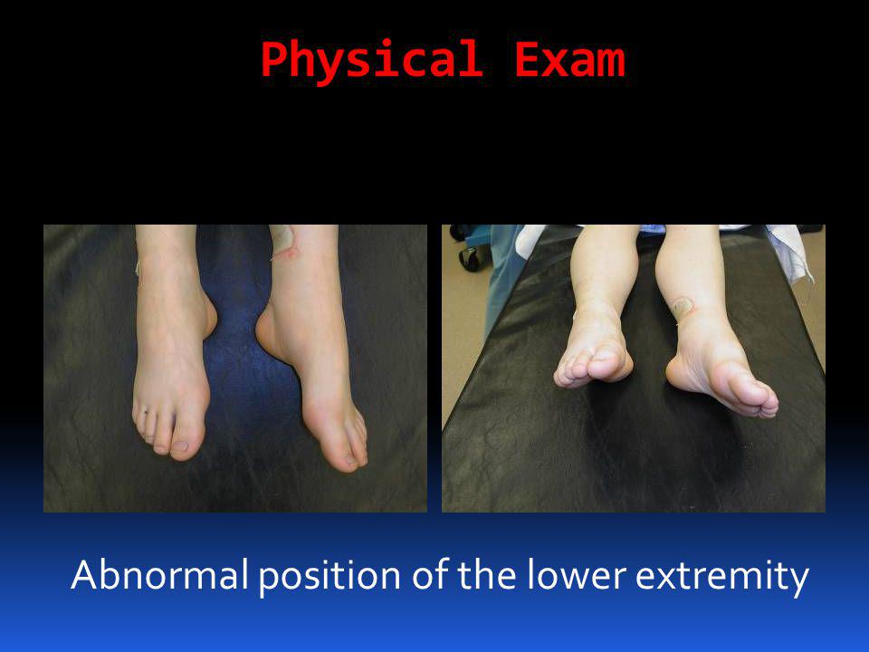 Physical Exam Abnormal position of the lower extremity
