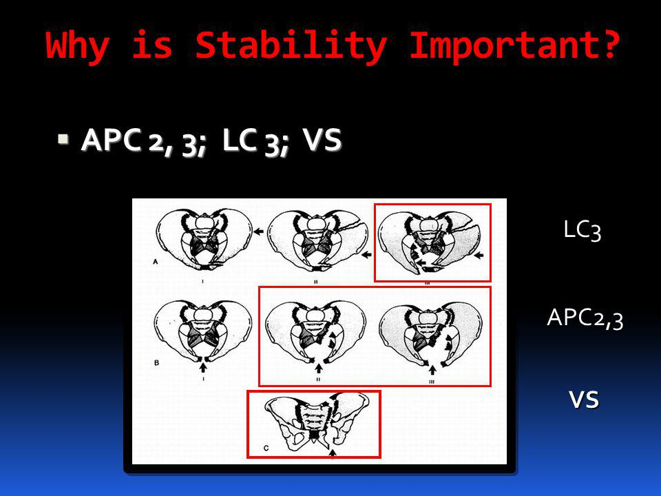 Why is Stability Important?  APC 2, 3; LC 3; VS LC3 APC2,3 VS