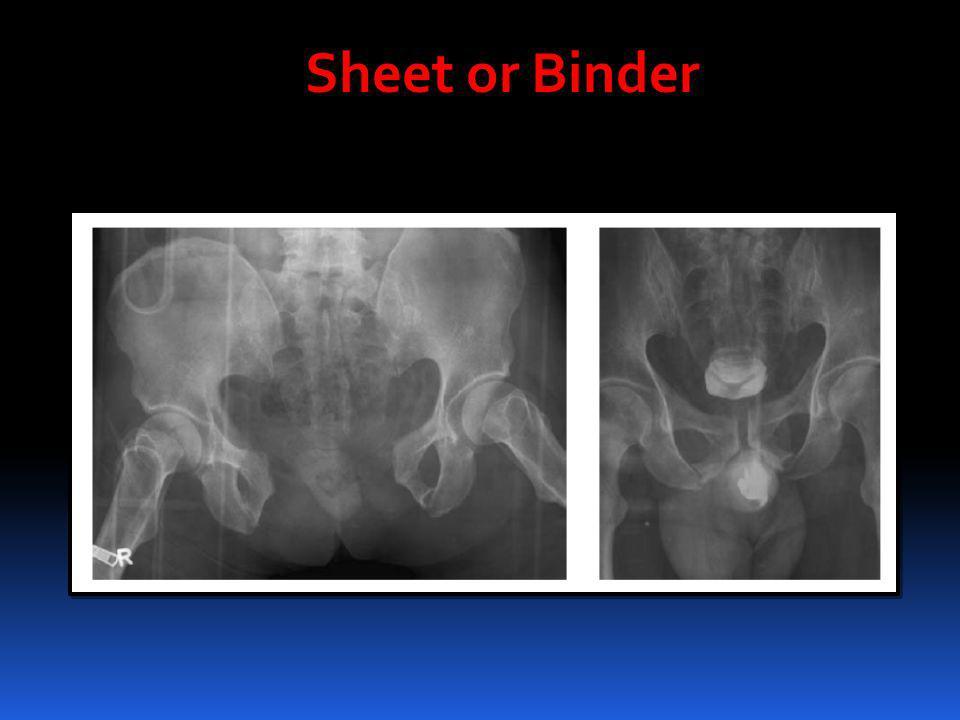 Sheet or Binder