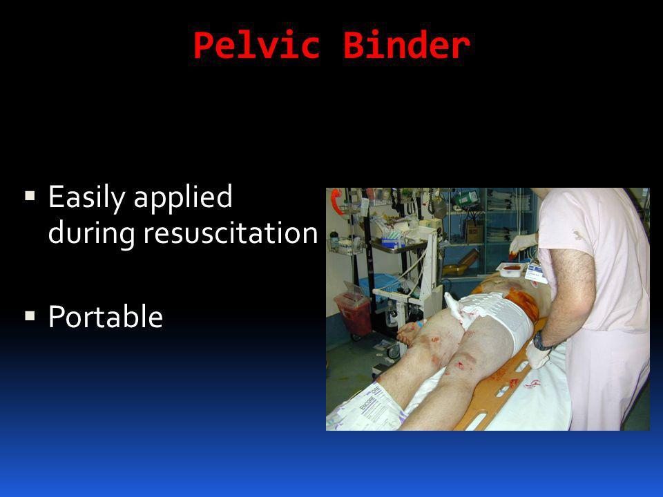Pelvic Binder  Easily applied during resuscitation  Portable