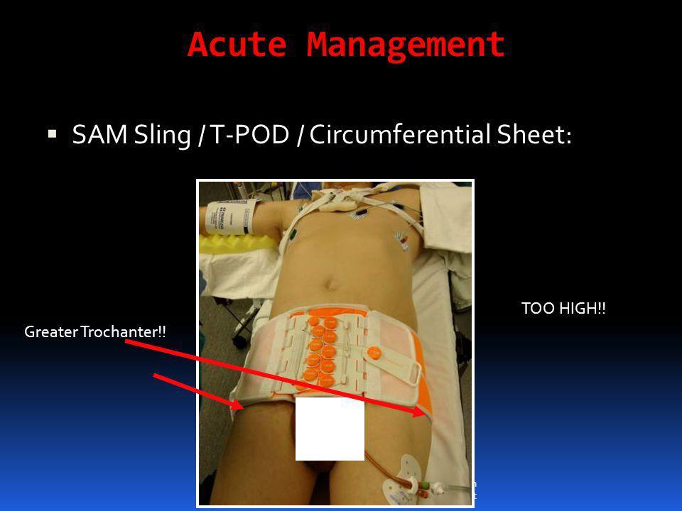 Pelvis and Acetabulum Frontline Treatment Acute Management  SAM Sling / T-POD / Circumferential Sheet: Greater Trochanter!! TOO HIGH!!