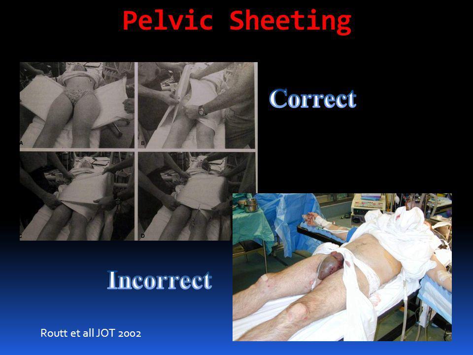 Pelvic Sheeting Routt et all JOT 2002