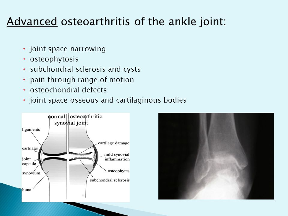 ◦ activity modification ◦ physical therapy ◦ medications ◦ orthotic devices ◦ footwear modifications