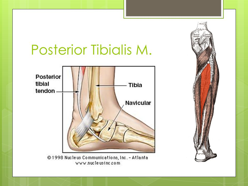 Posterior Tibialis…Tibialis Posterior… either way it's an important muscle.