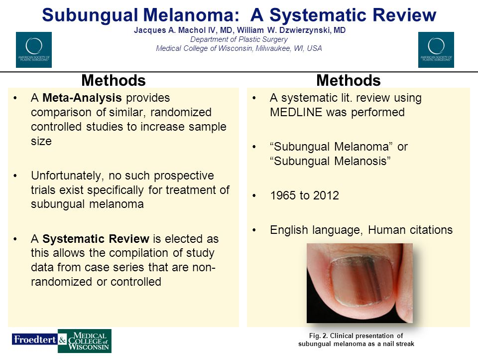 Subungual Melanoma: A Systematic Review Jacques A. Machol IV, MD, William W. Dzwierzynski, MD Department of Plastic Surgery Medical College of Wiscons