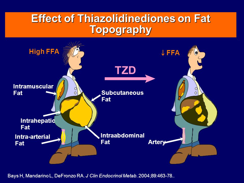 Intramuscular Fat Intrahepatic Fat Intraabdominal Fat Subcutaneous Fat Effect of Thiazolidinediones on Fat Topography High FFA FFA TZD Bays H, Mandarino L, DeFronzo RA.