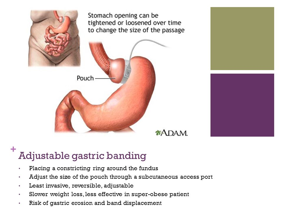 + Adjustable gastric banding Placing a constricting ring around the fundus Adjust the size of the pouch through a subcutaneous access port Least invas