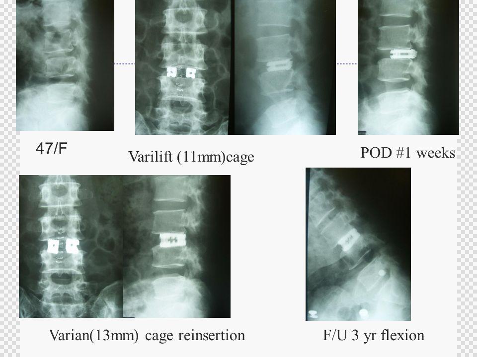47/F Varilift (11mm)cage POD #1 weeks Varian(13mm) cage reinsertionF/U 3 yr flexion