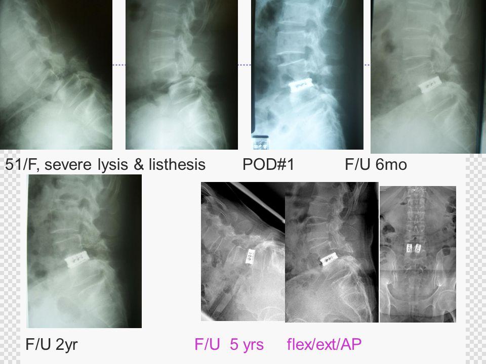 51/F, severe lysis & listhesis POD#1 F/U 6mo F/U 2yr F/U 5 yrs flex/ext/AP