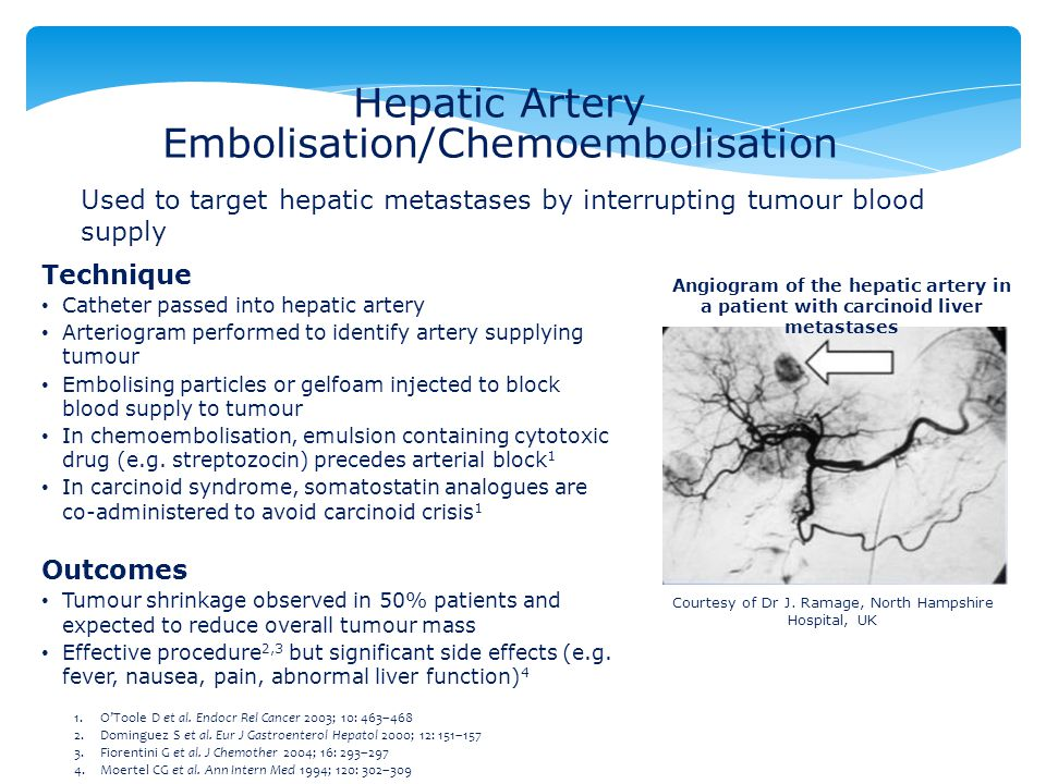 Hepatic Artery Embolisation/Chemoembolisation Technique Catheter passed into hepatic artery Arteriogram performed to identify artery supplying tumour Embolising particles or gelfoam injected to block blood supply to tumour In chemoembolisation, emulsion containing cytotoxic drug (e.g.