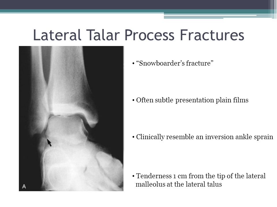 """Lateral Talar Process Fractures """"Snowboarder's fracture"""" Often subtle presentation plain films Clinically resemble an inversion ankle sprain Tendernes"""