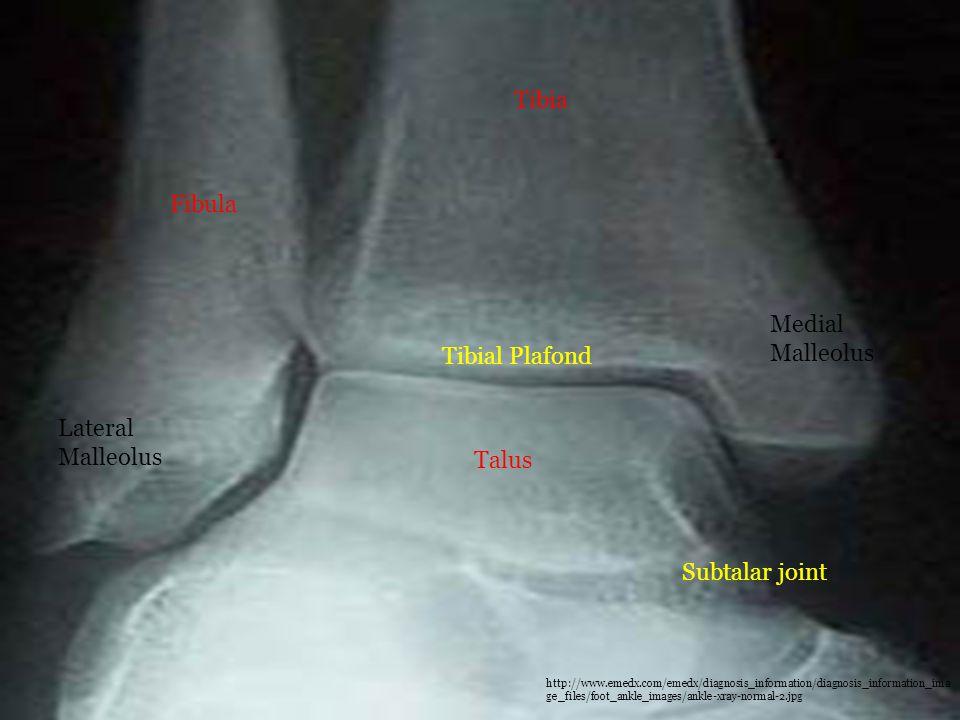 Tibia Fibula Talus Lateral Malleolus Medial Malleolus Subtalar joint Tibial Plafond http://www.emedx.com/emedx/diagnosis_information/diagnosis_informa