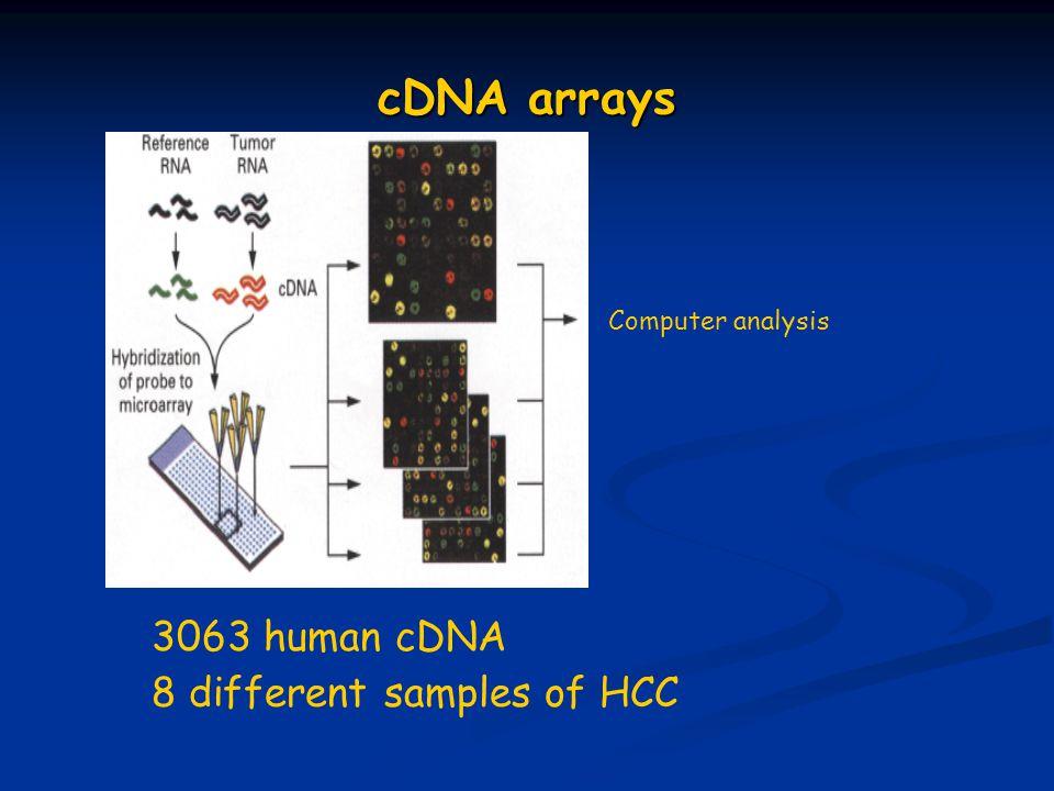 cDNA arrays 3063 human cDNA 8 different samples of HCC Computer analysis