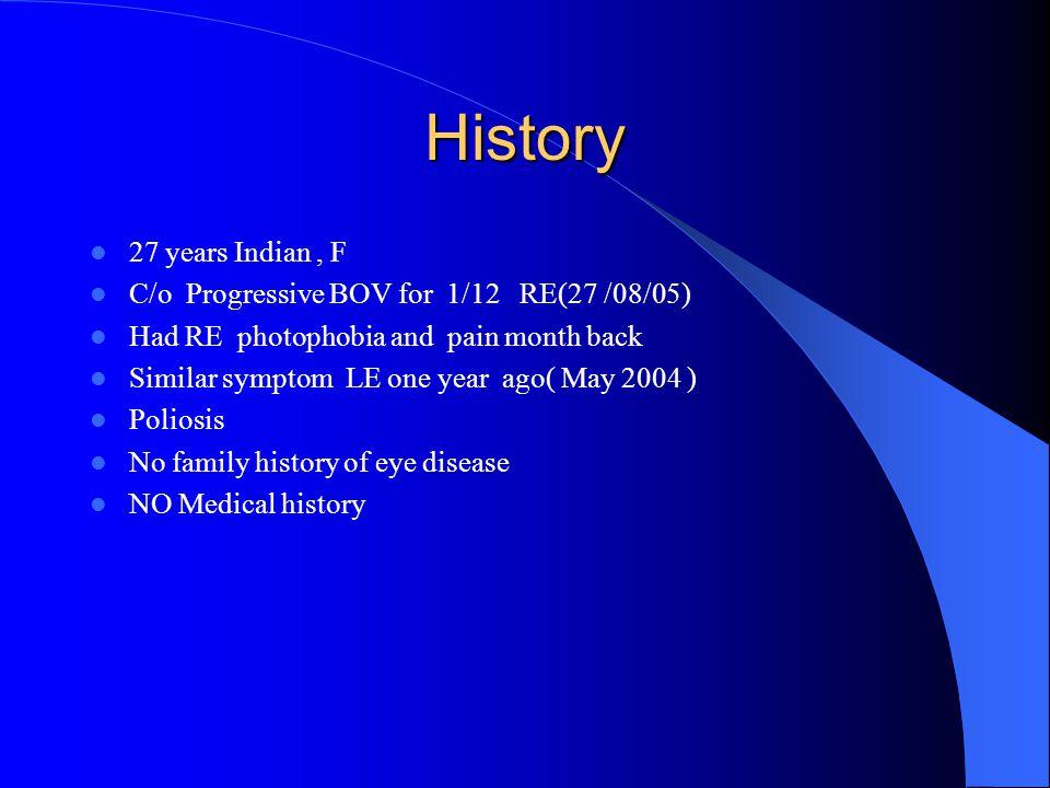 Ophthalmic examination CVR 6/30 CVL 6/6 AS =>NAD RT RAPD Fundus exam Macular scar .