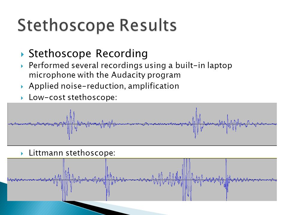  Stethoscope Recording  Performed several recordings using a built-in laptop microphone with the Audacity program  Applied noise-reduction, amplifi