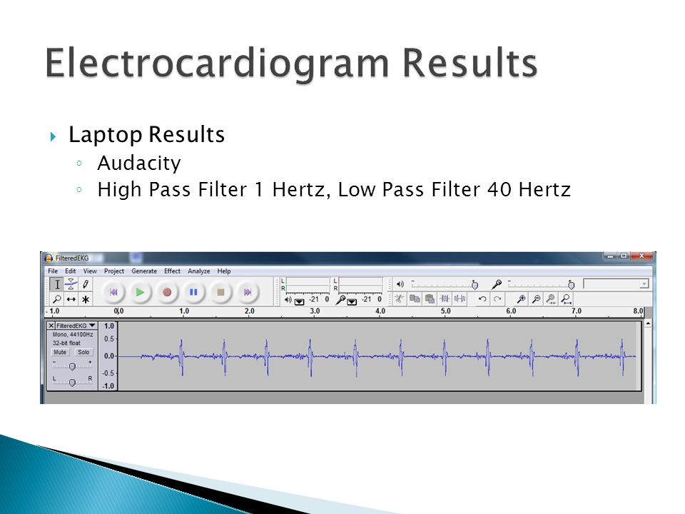 Electrocardiogram Results  Laptop Results ◦ Audacity ◦ High Pass Filter 1 Hertz, Low Pass Filter 40 Hertz