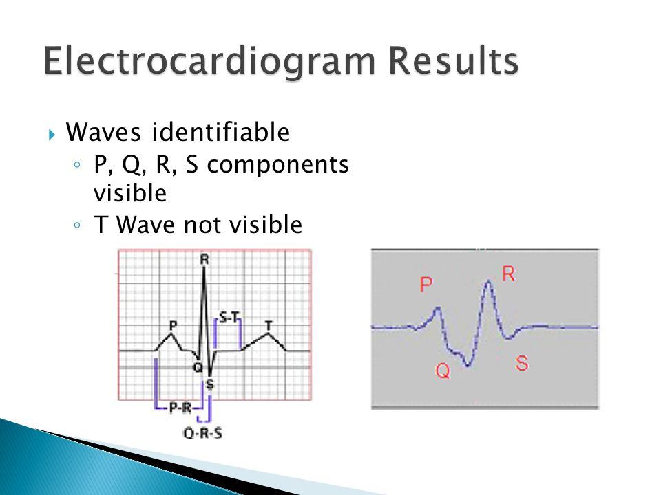 Electrocardiogram Results  Waves identifiable ◦ P, Q, R, S components visible ◦ T Wave not visible