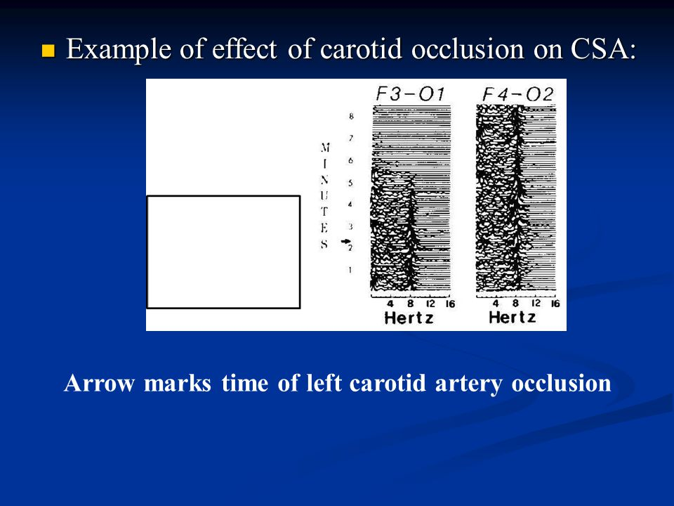 Example of effect of carotid occlusion on CSA: Example of effect of carotid occlusion on CSA: Arrow marks time of left carotid artery occlusion