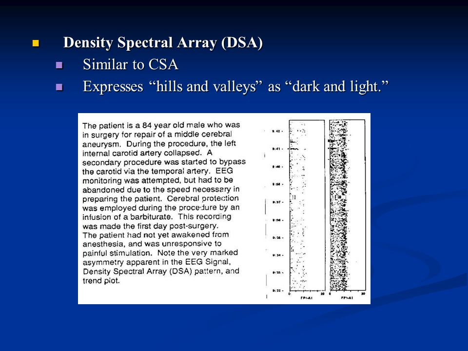 Density Spectral Array (DSA) Density Spectral Array (DSA) Similar to CSA Similar to CSA Expresses hills and valleys as dark and light. Expresses hills and valleys as dark and light.