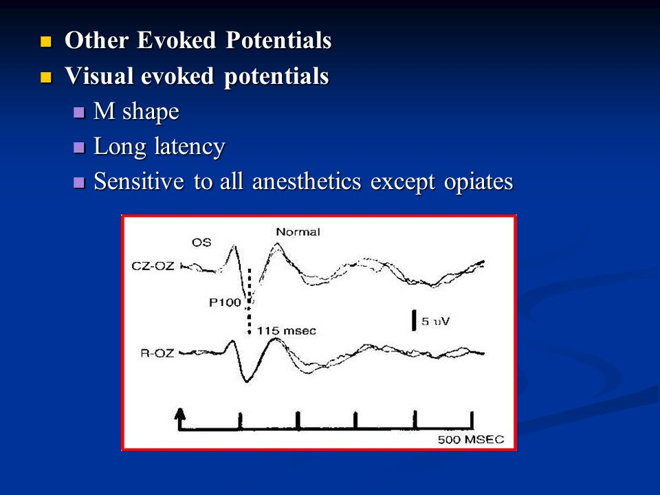 Other Evoked Potentials Other Evoked Potentials Visual evoked potentials Visual evoked potentials M shape M shape Long latency Long latency Sensitive to all anesthetics except opiates Sensitive to all anesthetics except opiates
