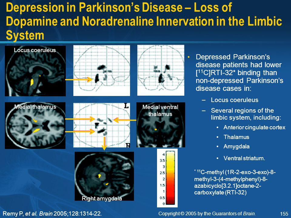 155 Depression in Parkinson's Disease – Loss of Dopamine and Noradrenaline Innervation in the Limbic System Depressed Parkinson's disease patients had