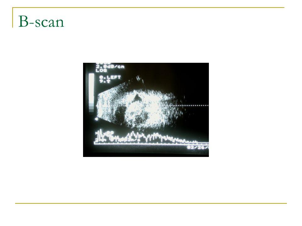 B-scan