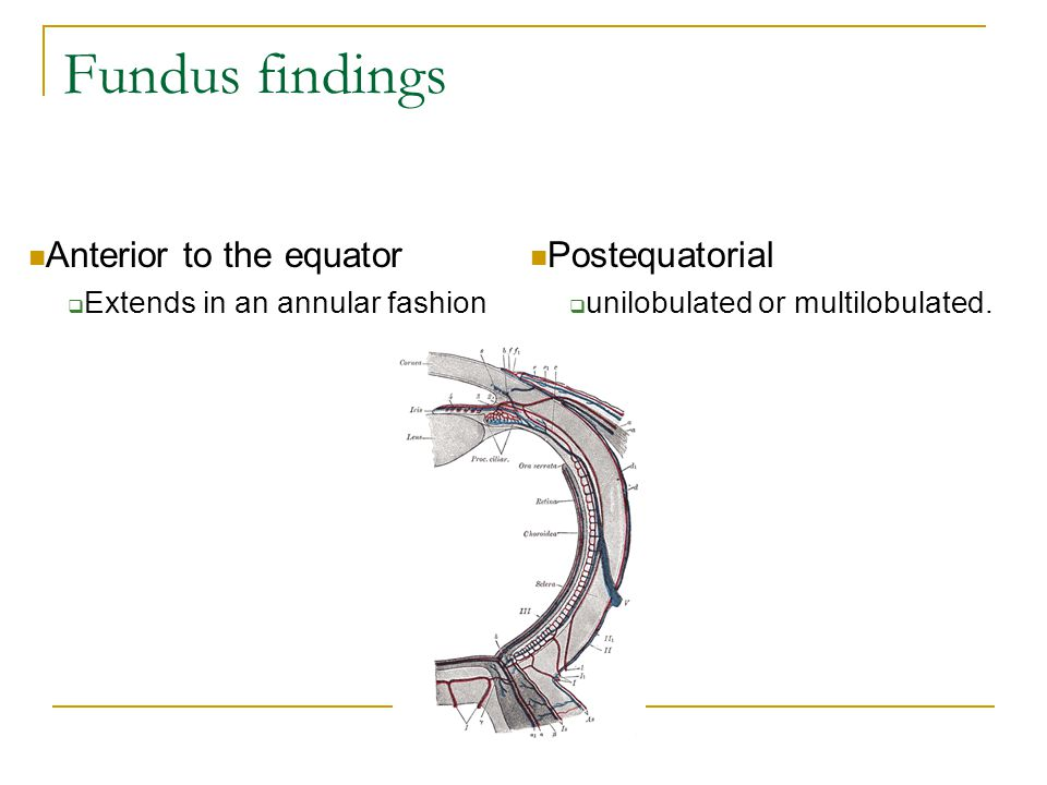 Fundus findings Anterior to the equator  Extends in an annular fashion Postequatorial  unilobulated or multilobulated.