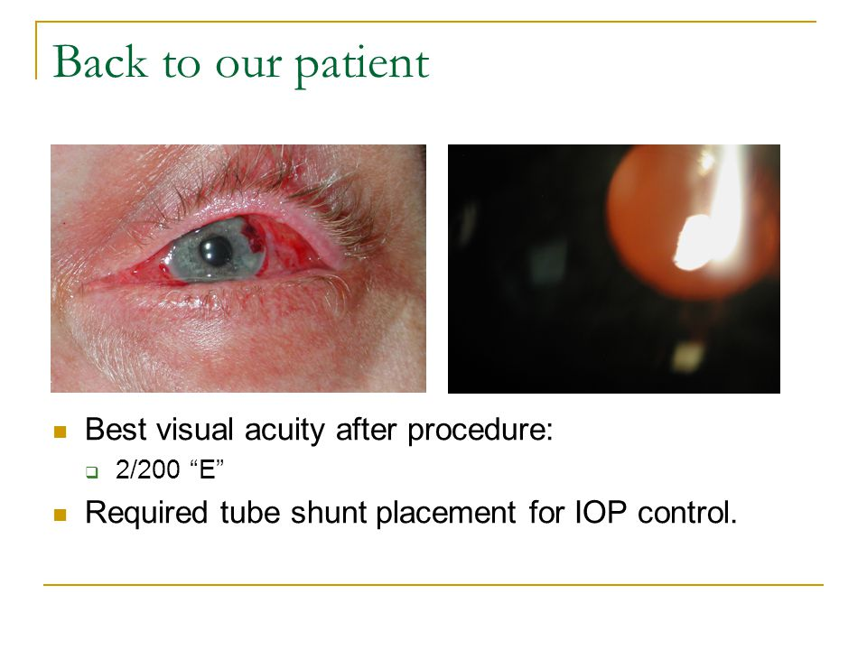 Back to our patient Best visual acuity after procedure:  2/200 E Required tube shunt placement for IOP control.
