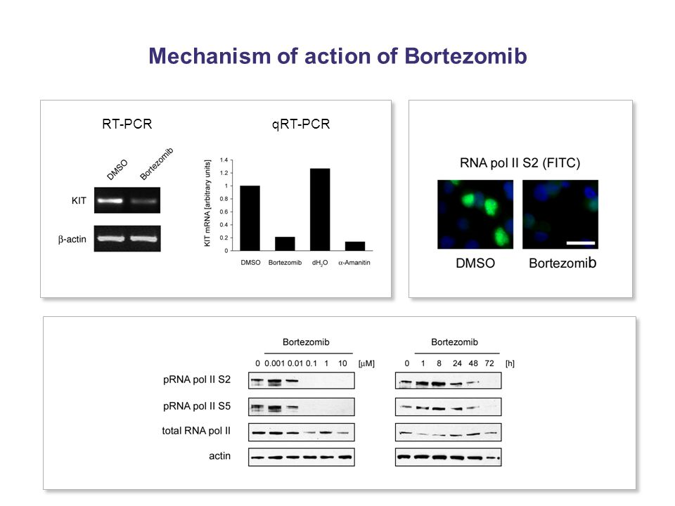 Mechanism of action of Bortezomib RT-PCRqRT-PCR