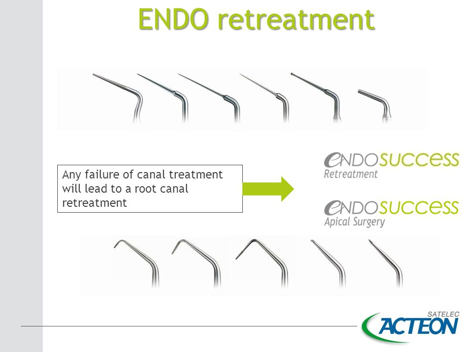 ENDO retreatment Any failure of canal treatment will lead to a root canal retreatment