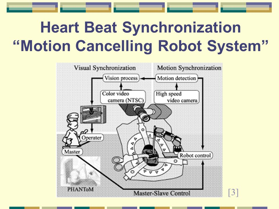 Heart Beat Synchronization Motion Cancelling Robot System [3]