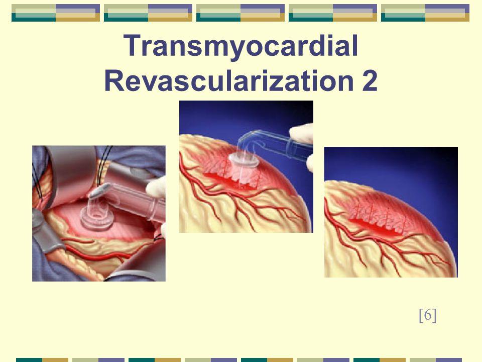 Transmyocardial Revascularization 2 [6]