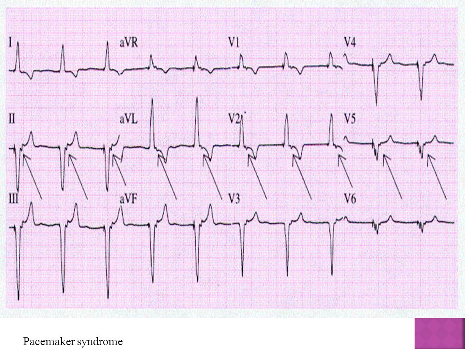Pacemaker syndrome