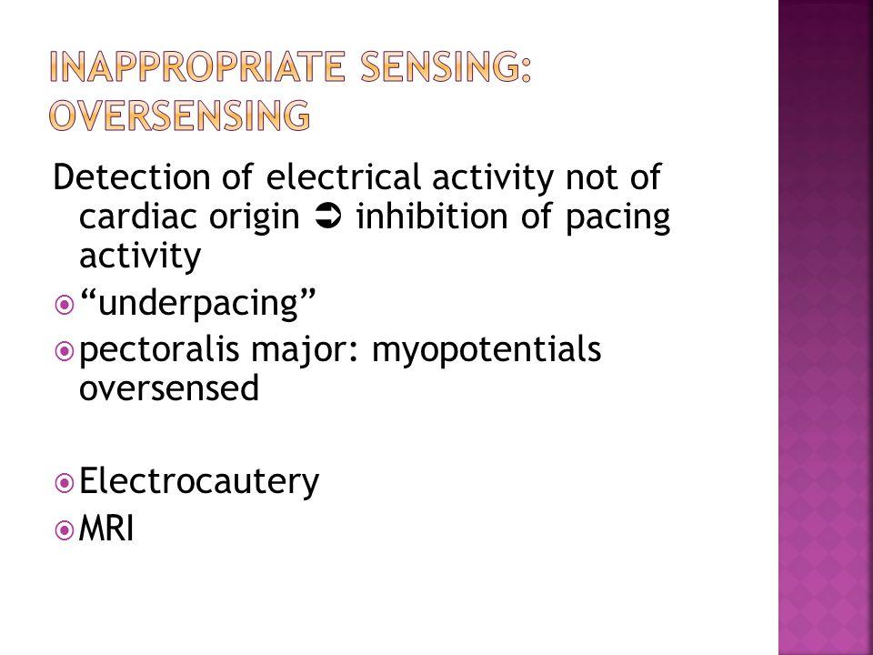 "Detection of electrical activity not of cardiac origin  inhibition of pacing activity  ""underpacing""  pectoralis major: myopotentials oversensed "