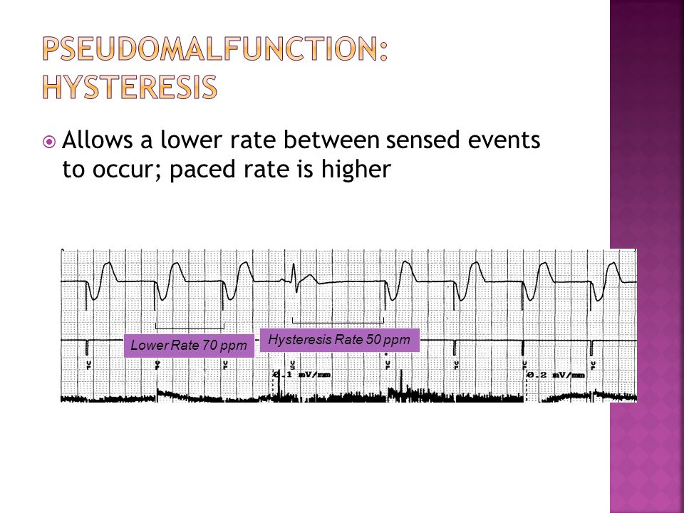  Allows a lower rate between sensed events to occur; paced rate is higher Lower Rate 70 ppm Hysteresis Rate 50 ppm