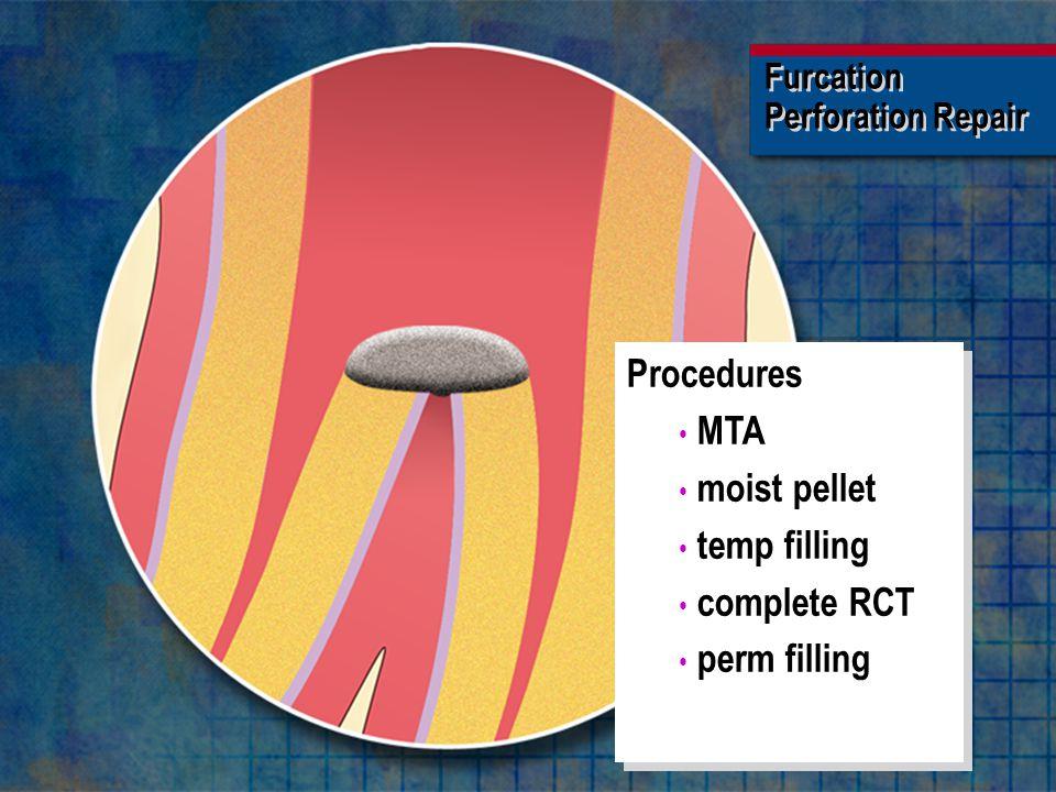 Furcation Perforation Repair Furcation Perforation Repair Procedures MTA moist pellet temp filling complete RCT perm filling Procedures MTA moist pell