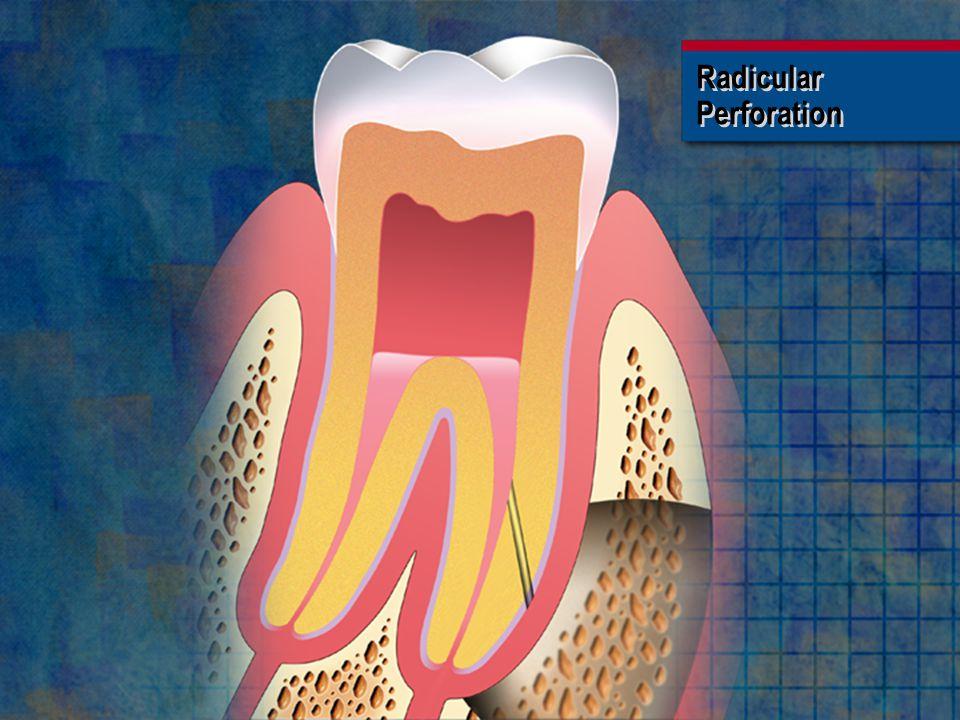 Radicular Perforation Radicular Perforation