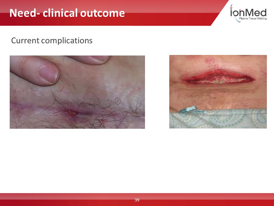 Need- clinical outcome 39 Current complications