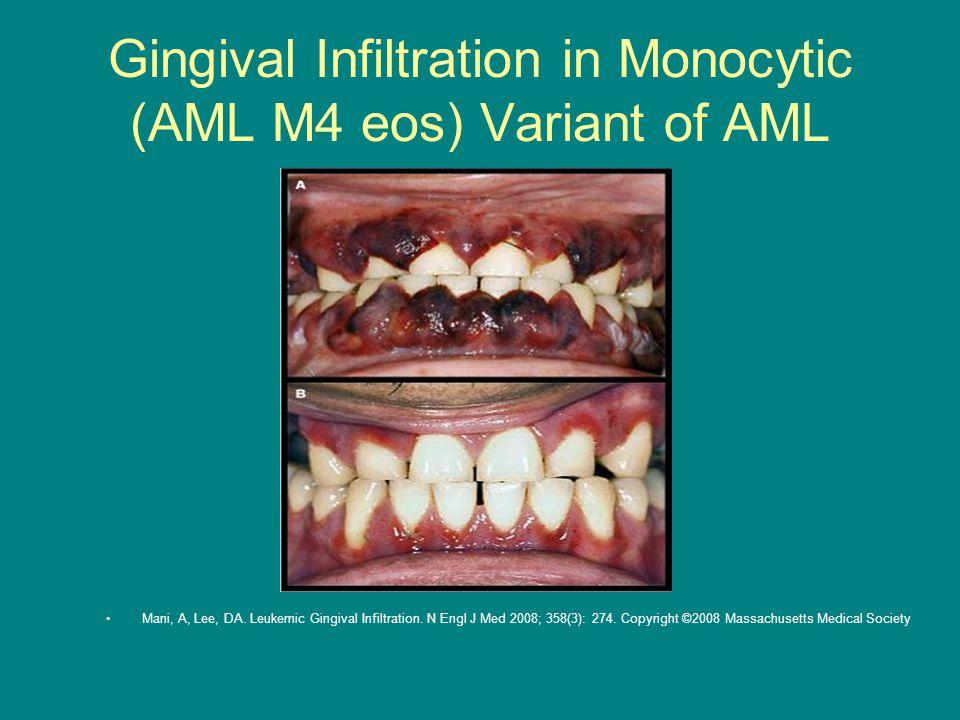 Gingival Infiltration in Monocytic (AML M4 eos) Variant of AML Mani, A, Lee, DA. Leukemic Gingival Infiltration. N Engl J Med 2008; 358(3): 274. Copyr
